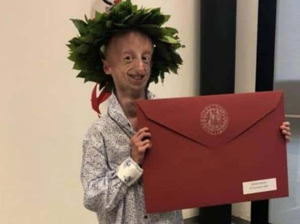 """Un altro importante traguardo. A soli ventidue anni, Sammy Basso, affetto da progeria, si laurea con 110 e lode in Scienze Naturali con indirizzo Biologico Molecolare discutendo la tesi """"Novel use of CRISPR-Cas9 System as a therapy for HGPS""""."""