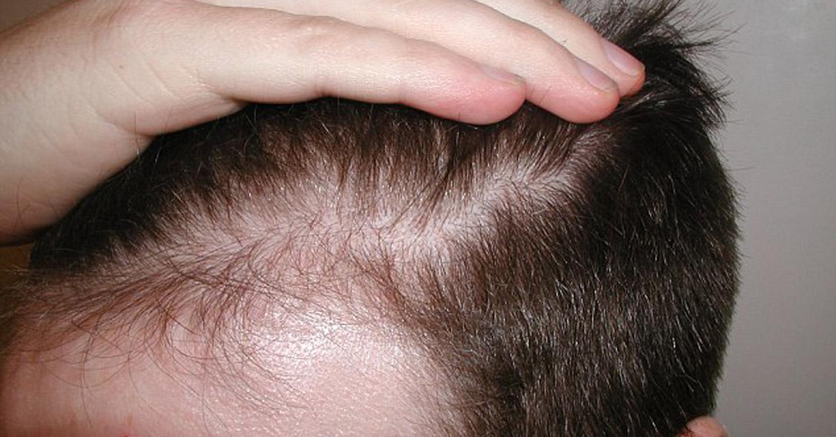 Lo sai che un adulto medio possiede circa tra i 100.000 e i 150.000 capelli e ne perde giornalmente dai 50 ai 100? Ecco alcuni consigli.