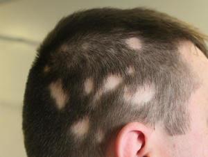 L'alopecia è un problema dei capelli e peli e riguarda la degradazione della loro qualità e la progressiva diradazione o scompars